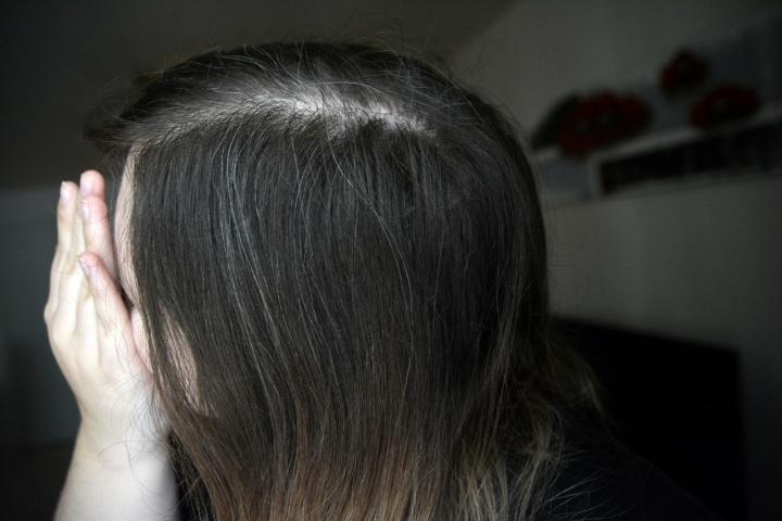J'ai des cheveux blancs à 22ans!
